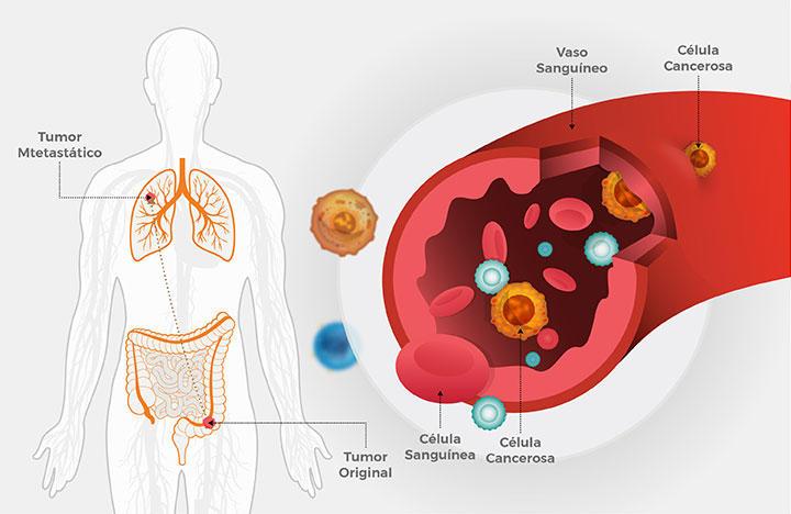 cancer pulmonar higado squamous papilloma path outlines