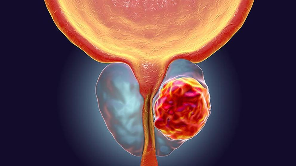 Cancerul de prostata | printreoale.ro