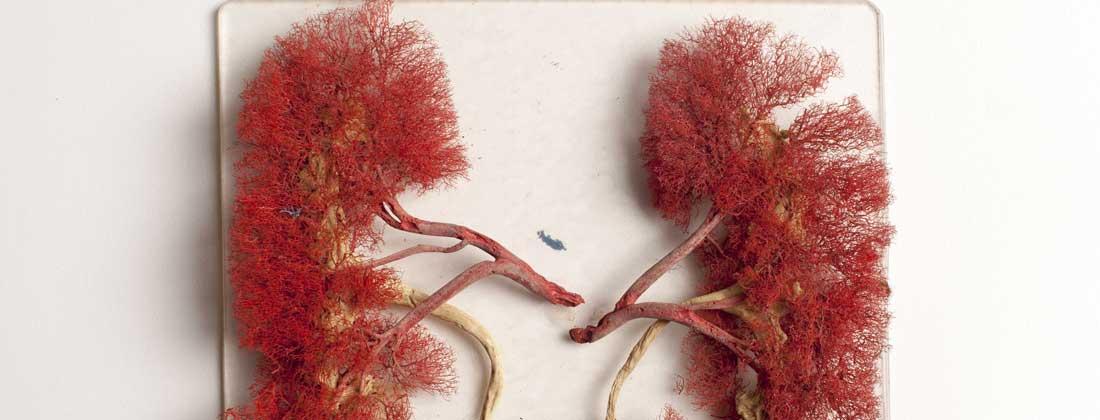 cancer renal simptome)