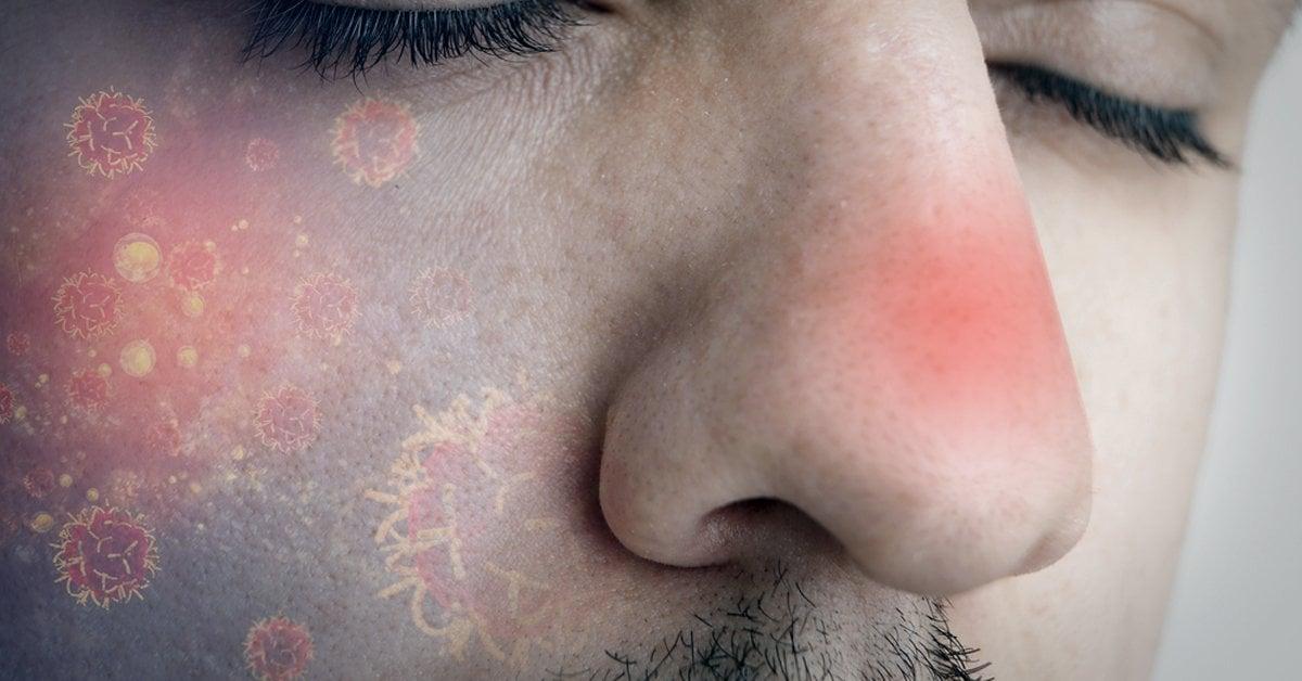 papiloma humano nariz