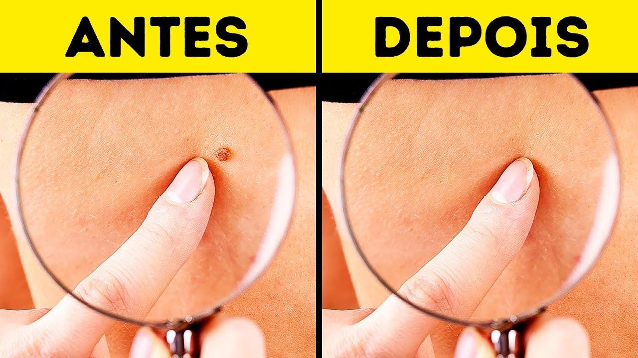 papiloma fibroepitelial acrochordon)