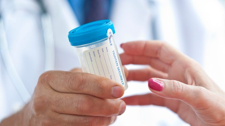 Protein in the Urine Linked to Life Expectancy | National Kidney Foundation