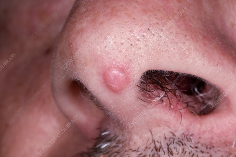 nose papillomas treatment