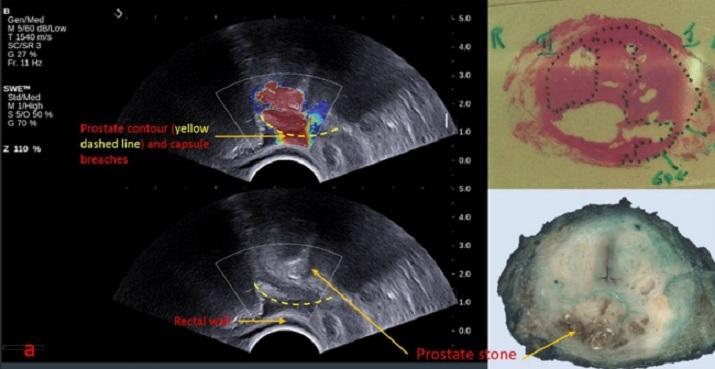cancer de prostata ultrasonido)