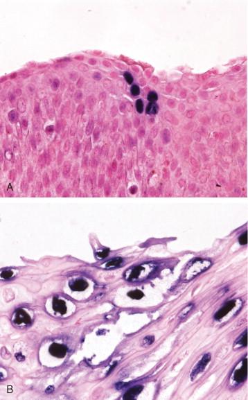condyloma acuminatum koilocytes)