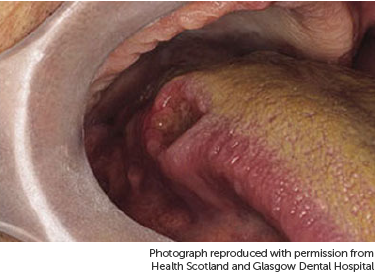 hpv throat cancer base of tongue)