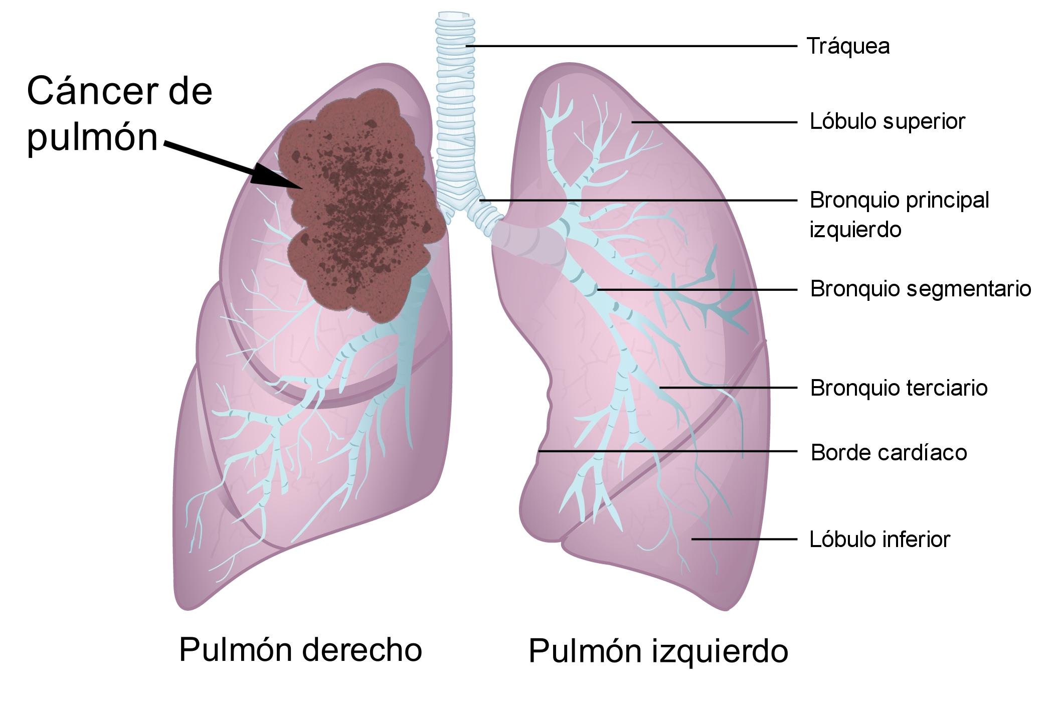 cancer de colon benigno o maligno)