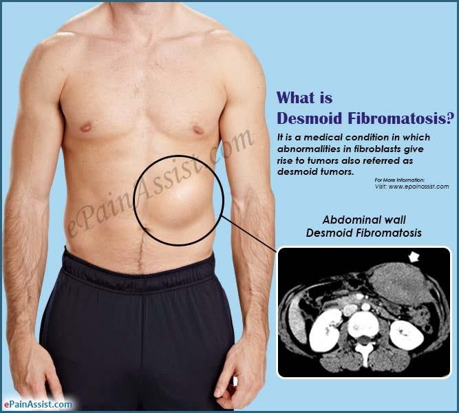 Dyspareunia - Women's Health Issues - MSD Manual Consumer Version