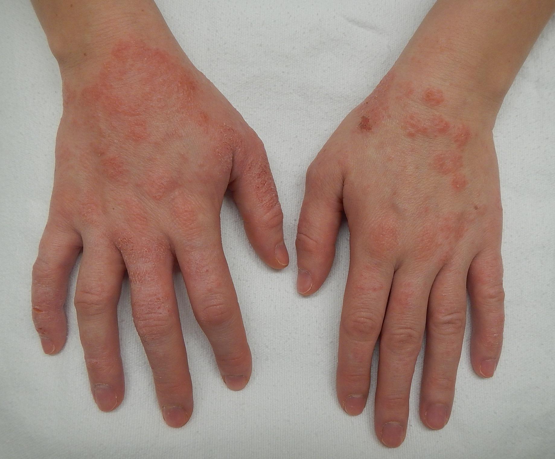 Dermatita herpetiforma - boala Duhring