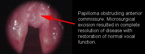 respiratory papillomatosis medication