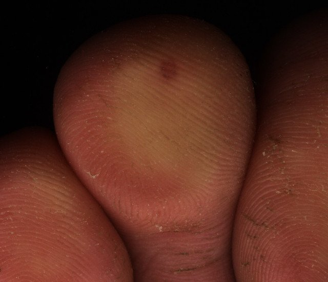 papillomavirus des verrues
