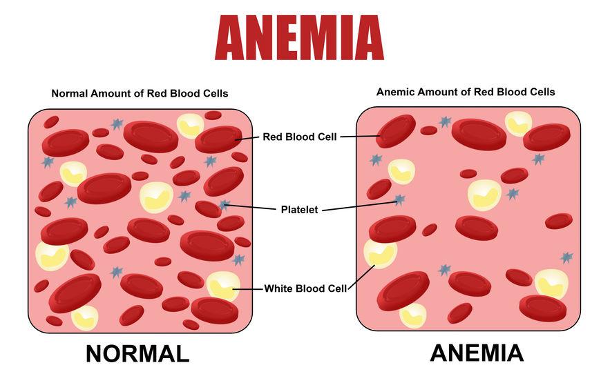 ANEMIA - Definiția și sinonimele anemia în dicționarul Spaniolă