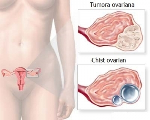 Cancer ovarian - Tot ce trebuie să ştii | Cancer