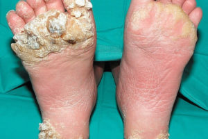 hpv wart on foot)