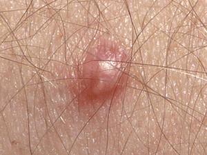 human papillomavirus male)