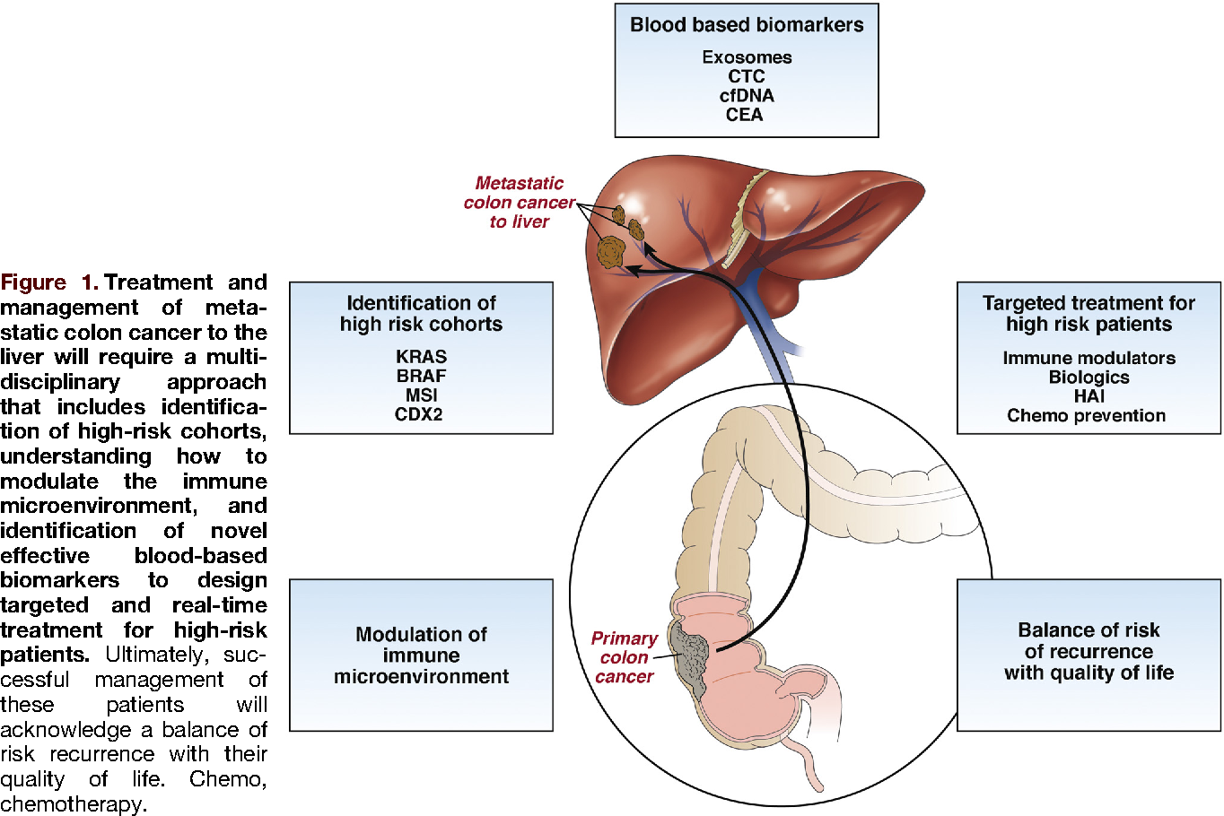metastatic cancer colon