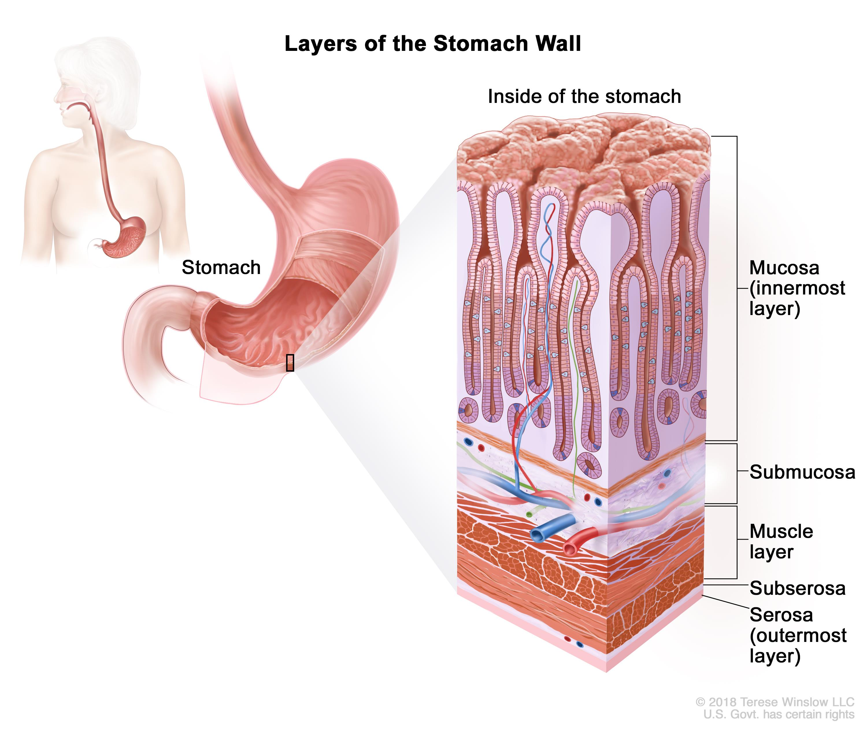 metastatic cancer from gastric