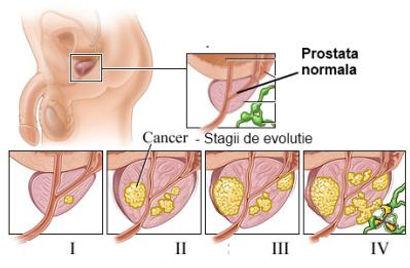 cancerul de prostata varsta hpv warts vaccine