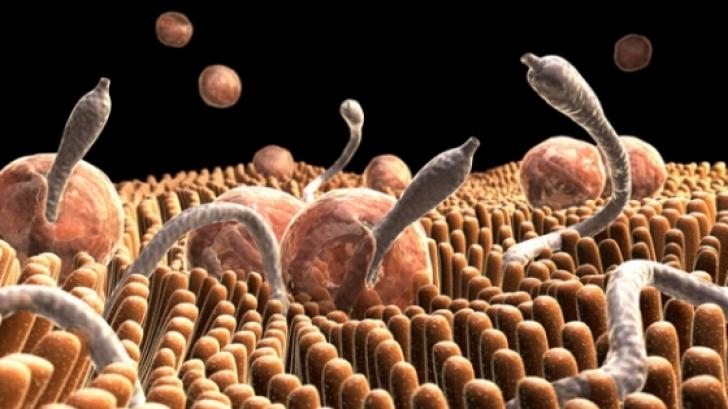 analize viermi paraziti