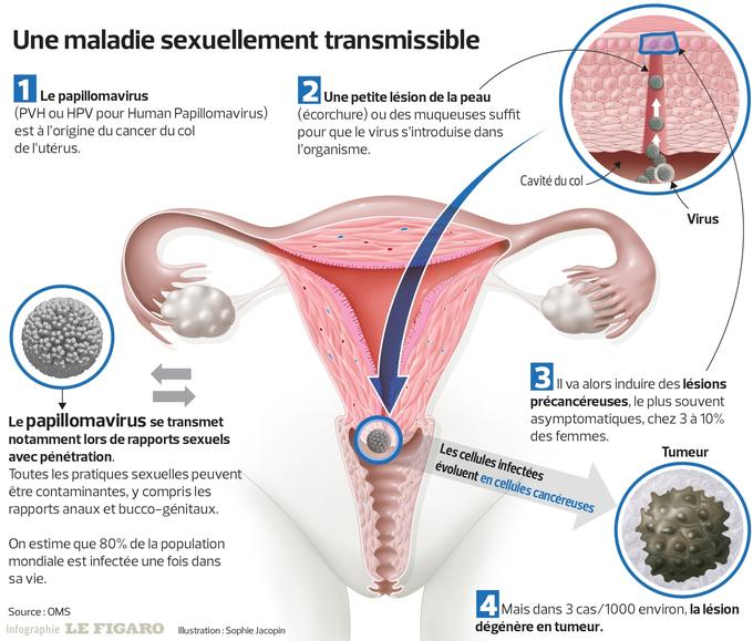 disparition papillomavirus homme alimente pentru detoxifierea pancreasului