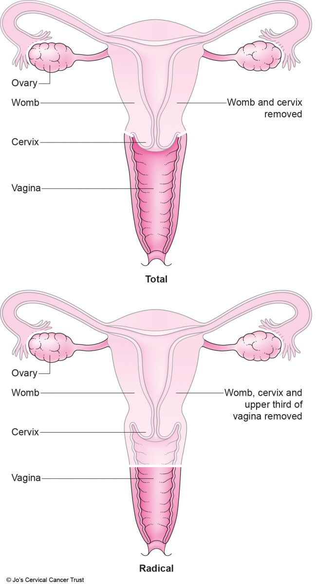 ovarian cancer hysterectomy)