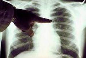 cancer la plamani tigari