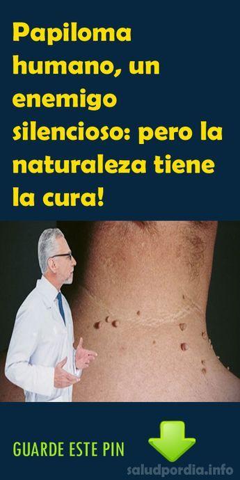 virus papiloma humano la cura