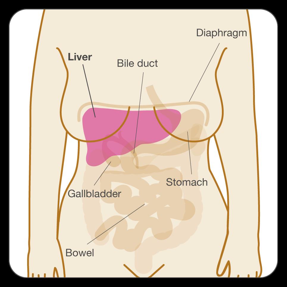 uterine cancer end stage)