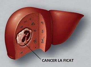 cancer mamar manifestari clinice toxin def