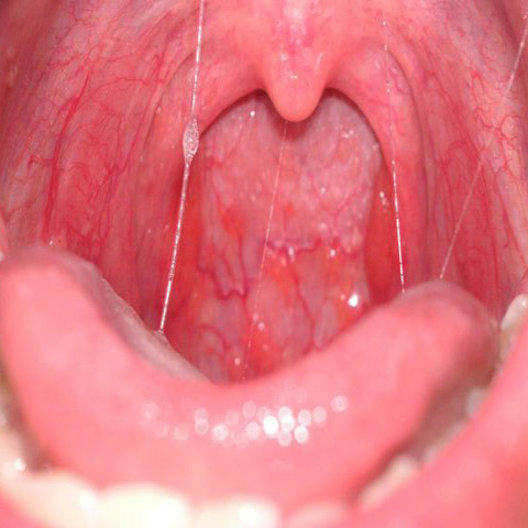 hpv in throat treatment)