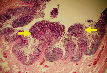 cancer de colon es hereditario helmintox medicine