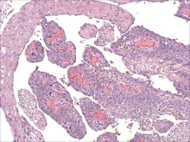 squamous papilloma urethra)