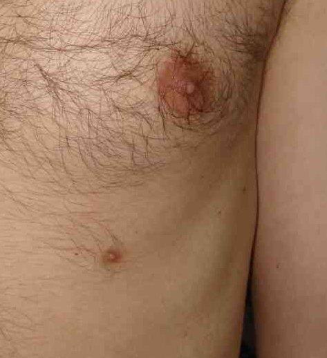 papilloma capezzolo gravidanza)