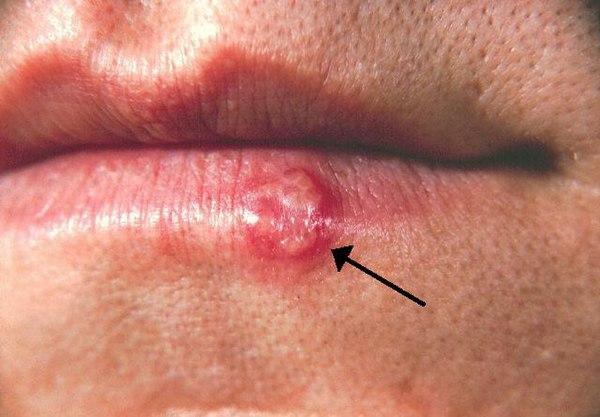 condyloma acuminata herpes