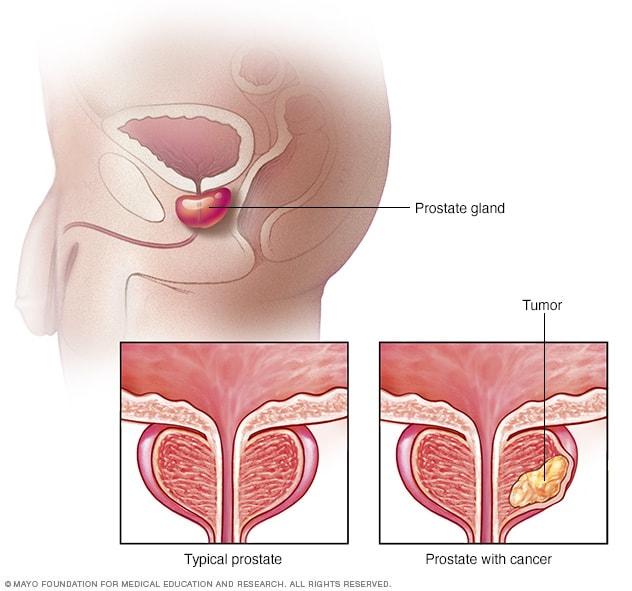 haematospermia kezelése Népi tippek a prosztatitisből