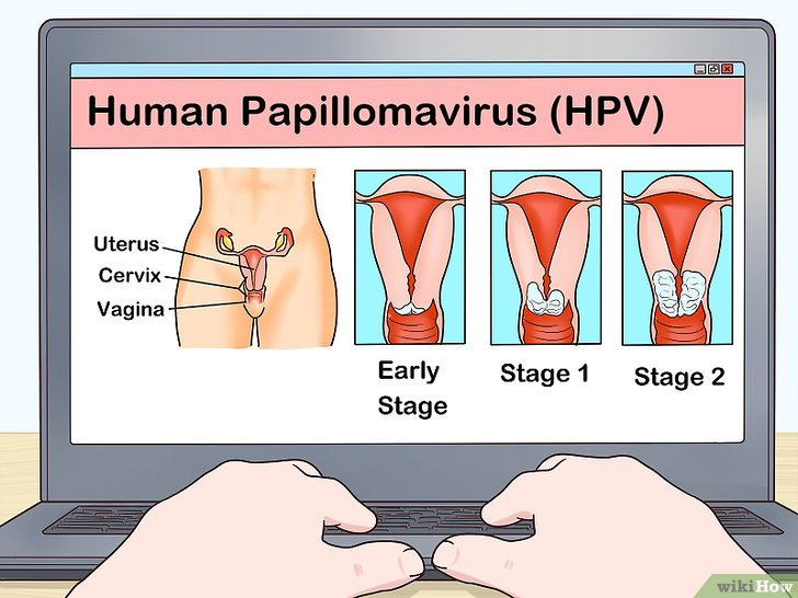 virus papiloma humano sin tener relaciones)