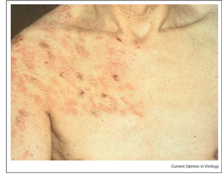 hpv herpes zoster)