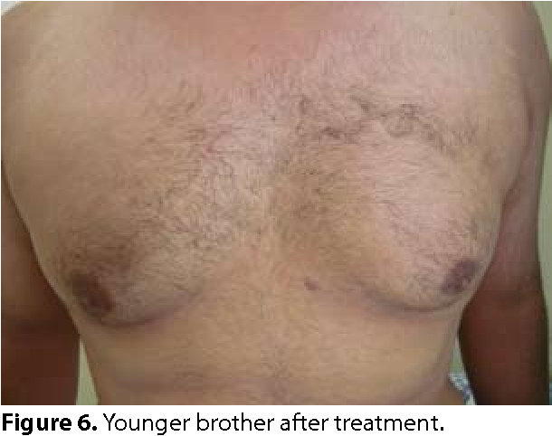treatment for confluent and reticulated papillomatosis)