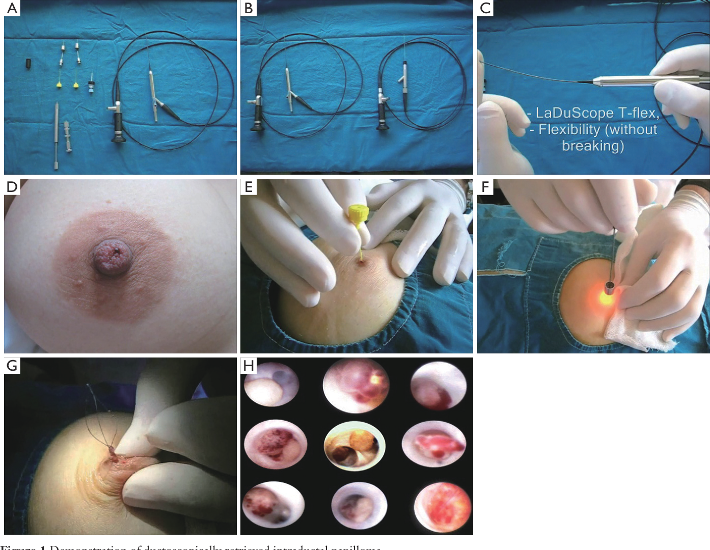 intraductal papilloma breast surgery)