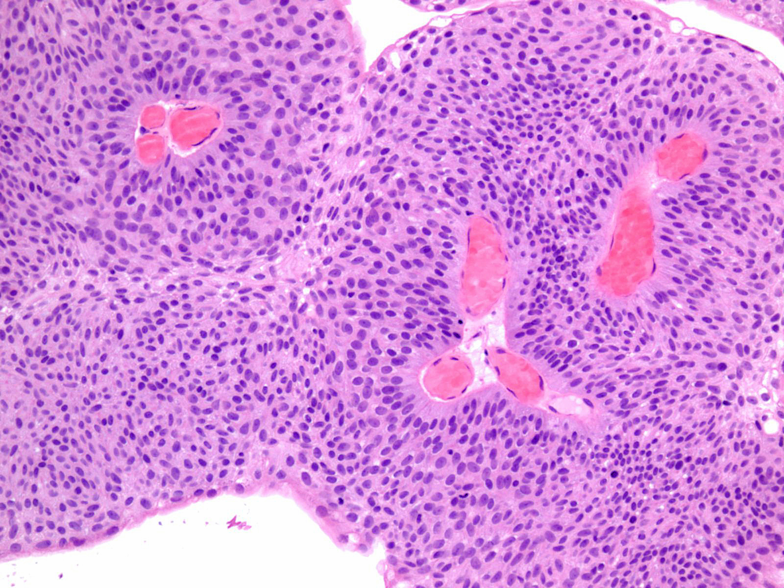 papillary urothelial carcinoma icd 9