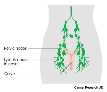 cancer abdominal lymph nodes