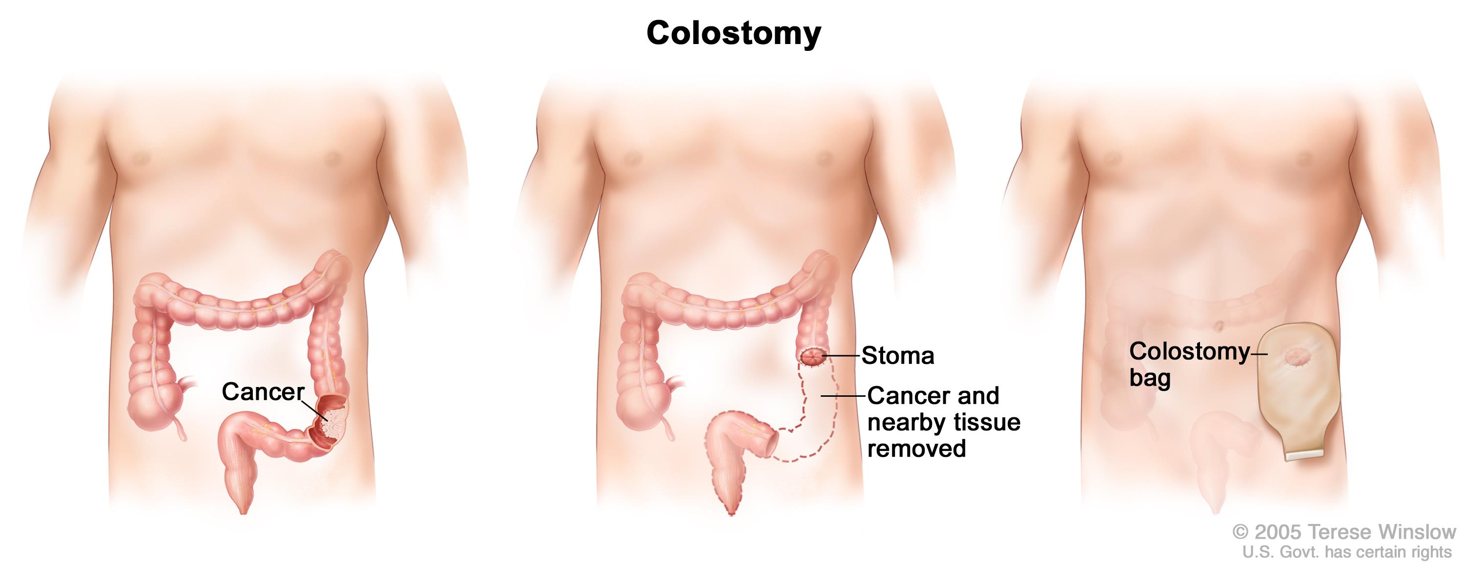colorectal cancer cure