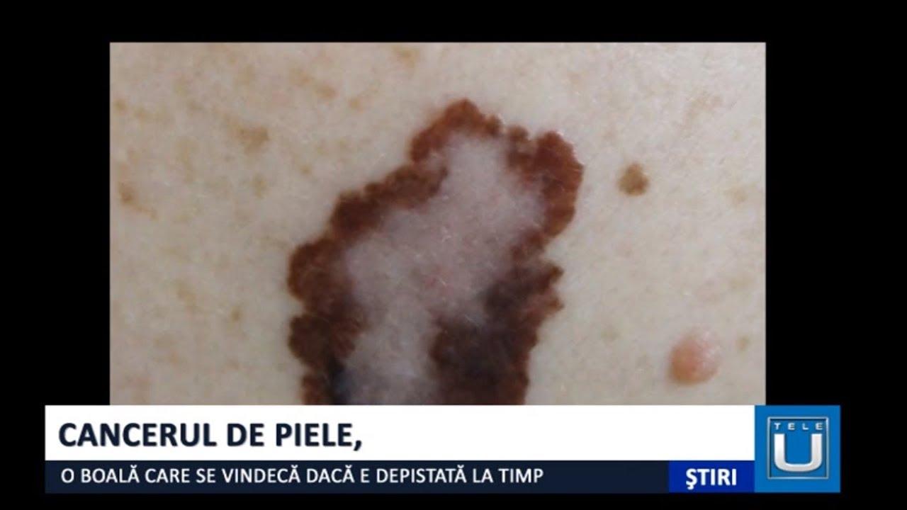 cancerul de piele)