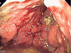 cancerul gastric infiltrativ)