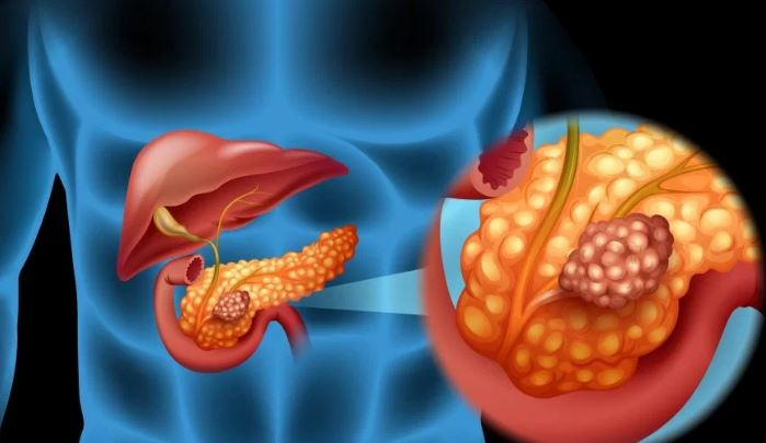 helmintox suspensija berniem virus del papiloma humano genotipo 18