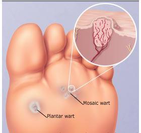 hpv virus and plantar warts)