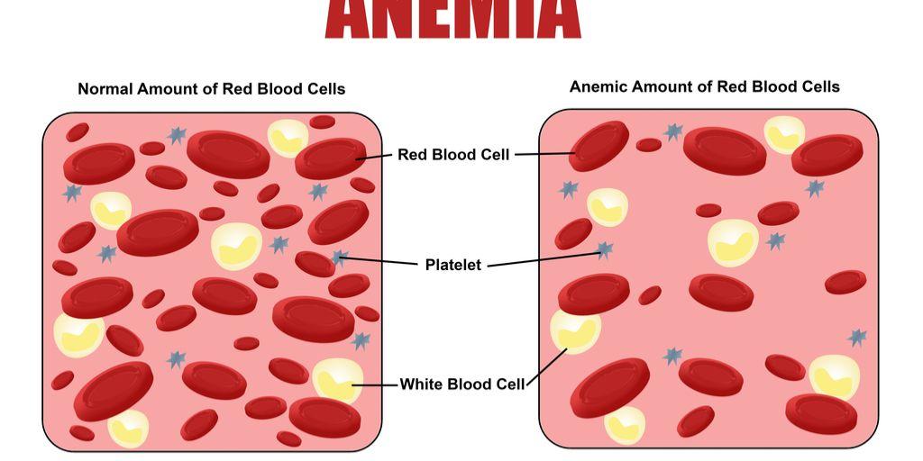 anemie a rakovina)