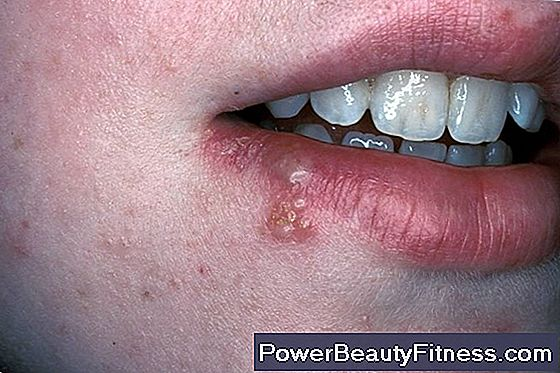 papilloma virus bocca gola)