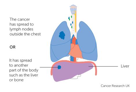 aggressive cancer stage 4 paraziti boli piele