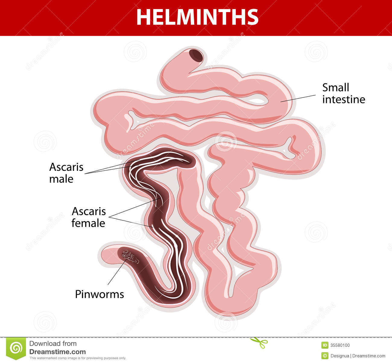 helminth for sale papilloma virus ano sintomi